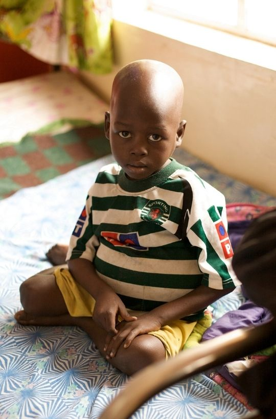 Young Cancer Patient Malawi Boy In Hospital World Child Cancer